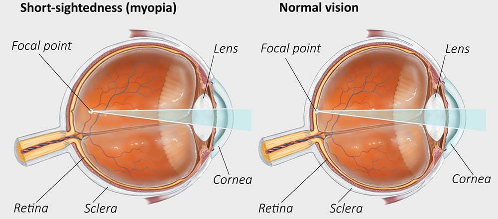 How myopia and normal vision compare